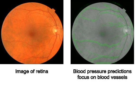 Photo of Google's New Artificial Intelligence (AI) To Predict Heart Disease Through Eye Scan